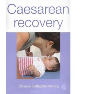 Caesarean Recovery by Chrissie Gallagher-Mundy - Paperback